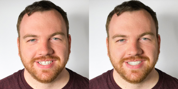 Smileview Before After Brian