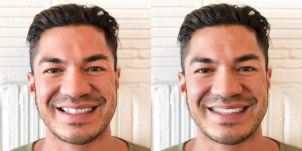 Smileview Before After Shane