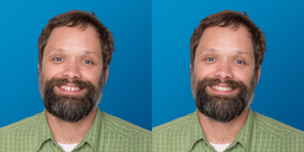 Smileview Before After Dan